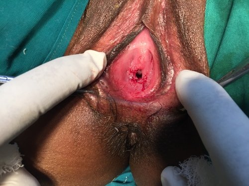 Hymen Repair-Hymenoplasty|Hymen Repair Clinic|Sadashiv Peth,Pune