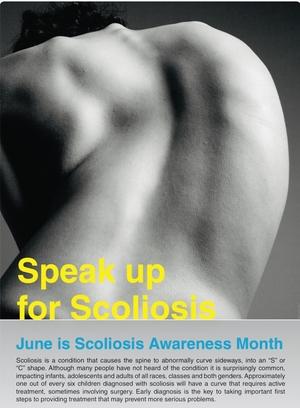 Scoliosis Awareness Month|Dr.Kiran Kumar Lingutla|Ameerpet,Hyderabad