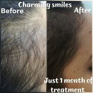 hair loss treatment at charming smiles clinic|Charming Smiles Dental Clinic|Dombivli West,Mumbai