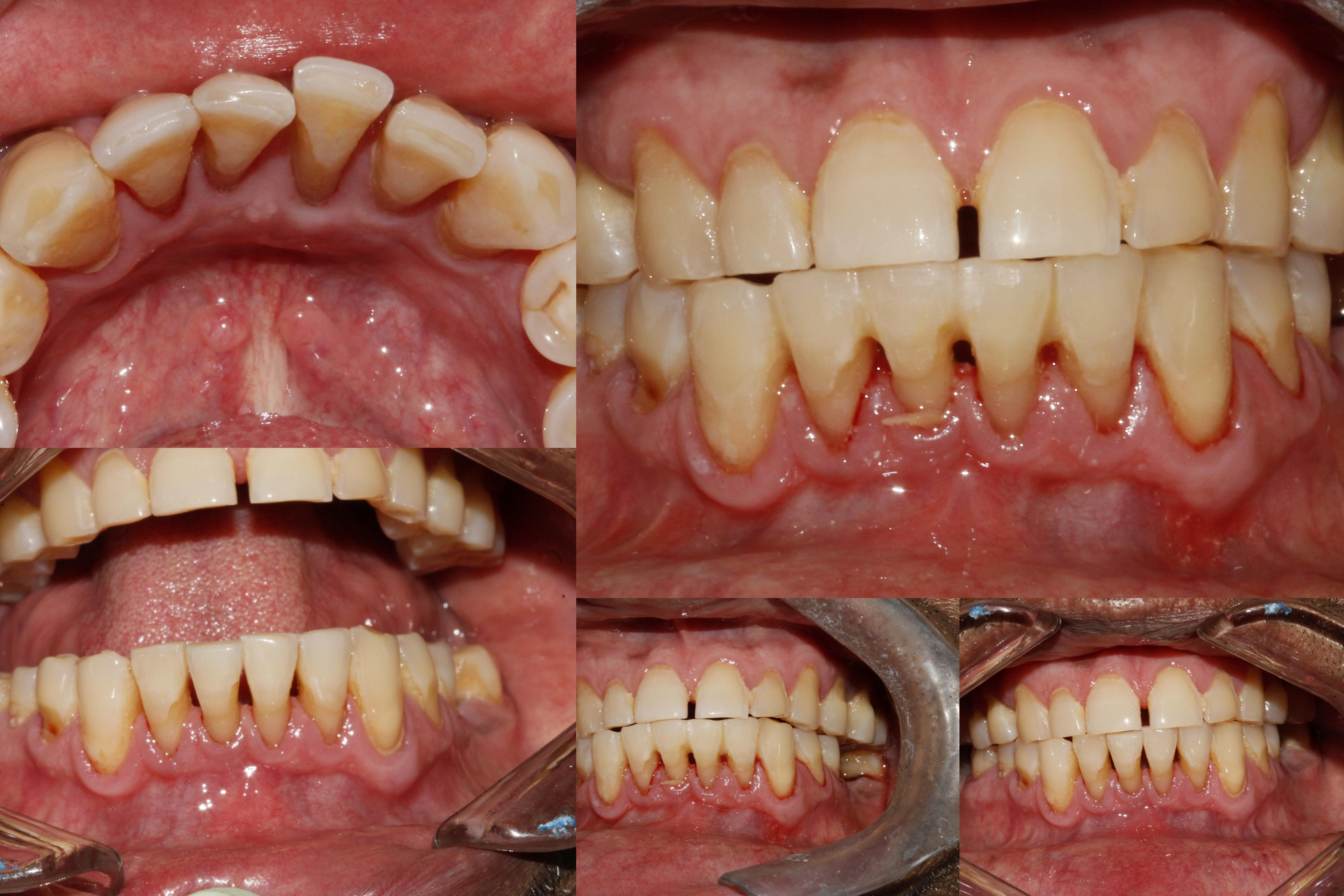 Splinting of Mobile Lower anterior Teeth Bhandari Dental Clinic Mukund Nagar,Pune