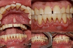 Splinting of Mobile Lower anterior Teeth|Bhandari Dental Clinic|Mukund Nagar,Pune