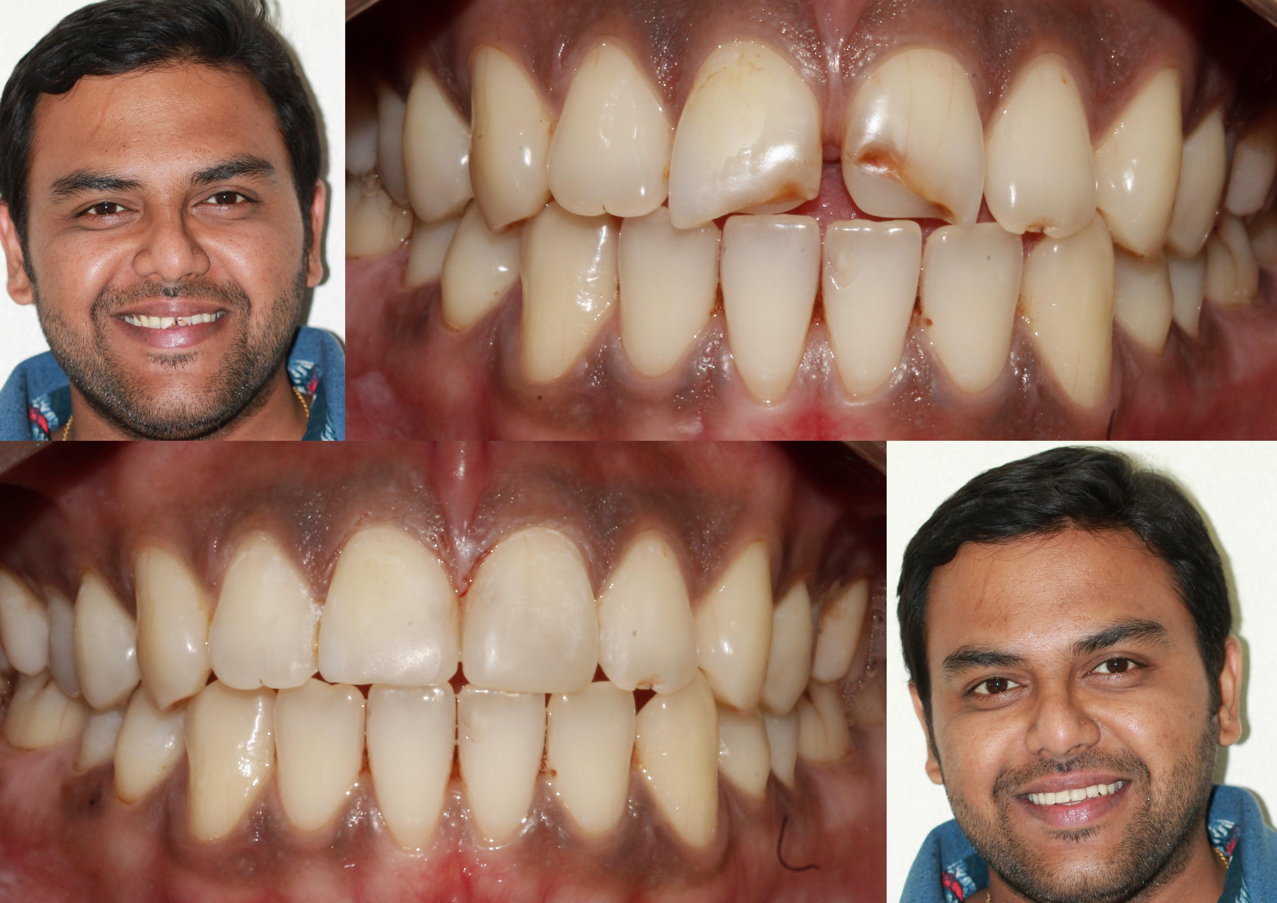Cosmetic Treatment to repair defect in upper front Teeth Bhandari Dental Clinic Mukund Nagar,Pune