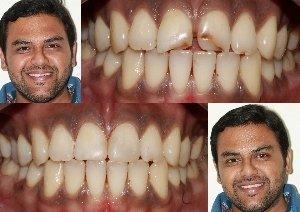 Cosmetic Treatment to repair defect in upper front Teeth|Bhandari Dental Clinic|Mukund Nagar,Pune