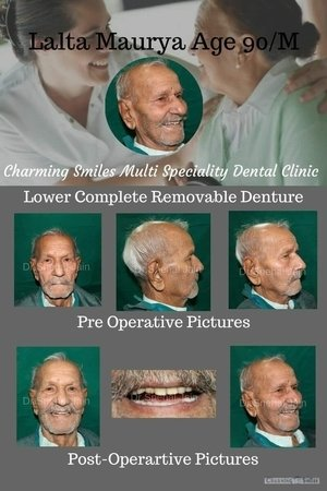 Happy and satisfied patient|Charming Smiles Dental Clinic|Dombivli West,Mumbai