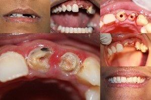 Fractured front teeth reconstruction|Bhandari Dental Clinic|Mukund Nagar,Pune