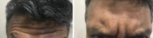 Before and after forehead wrinkles after Botox injections|Asha Oral and Maxillofacial Center and Dental Speciality Clinic |Datta Chauk,Karad