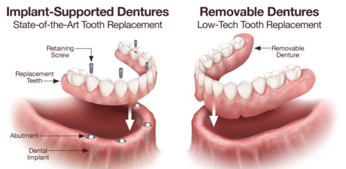 Implant Supported Denture|Charming Smiles Dental Clinic|Dombivli West,Mumbai