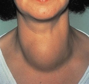 Thyroid swelling|The Head and Neck Clinic|Wanowarie,Pune