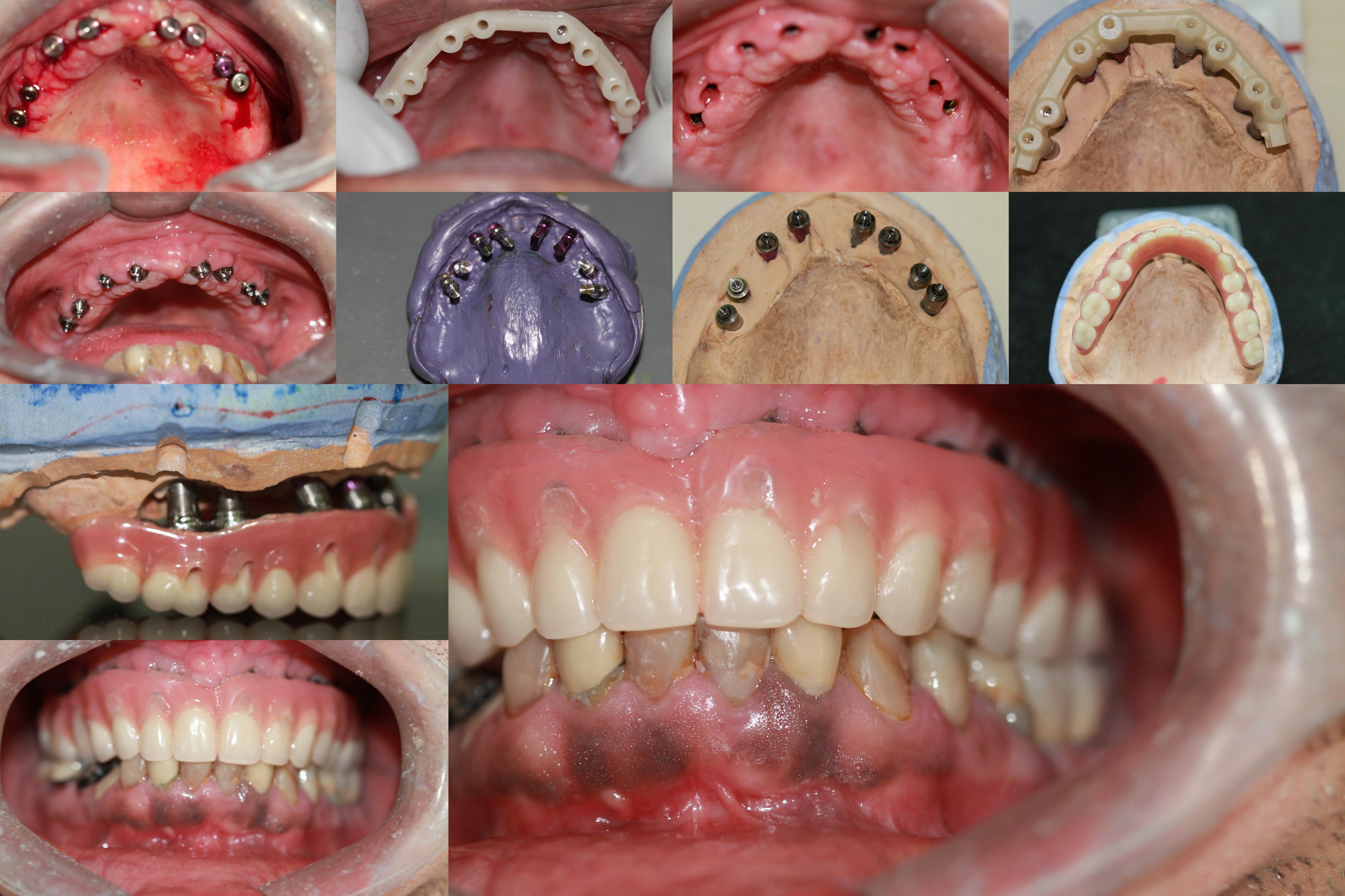Full Mouth Rehab using Dental Implants Bhandari Dental Clinic Mukund Nagar,Pune