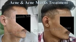 Acne & Marks Treatment|Root Care Dental, Skin and Hair Clinic|Karve Road ,Pune