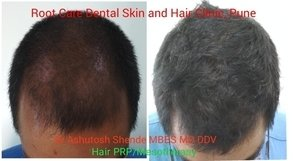 PRP Therapy For Hair Loss|Root Care Dental, Skin and Hair Clinic|Karve Road ,Pune