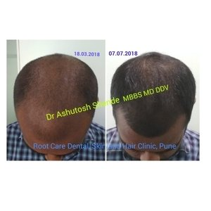 PRP/Mesotherapy For Hair Loss|Root Care Dental, Skin and Hair Clinic|Karve Road ,Pune