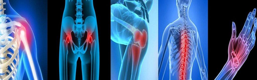 третичный сифилис: поражение суставов