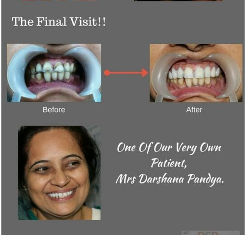The Final Visit|Charming Smiles Dental Clinic|Dombivli West,Mumbai