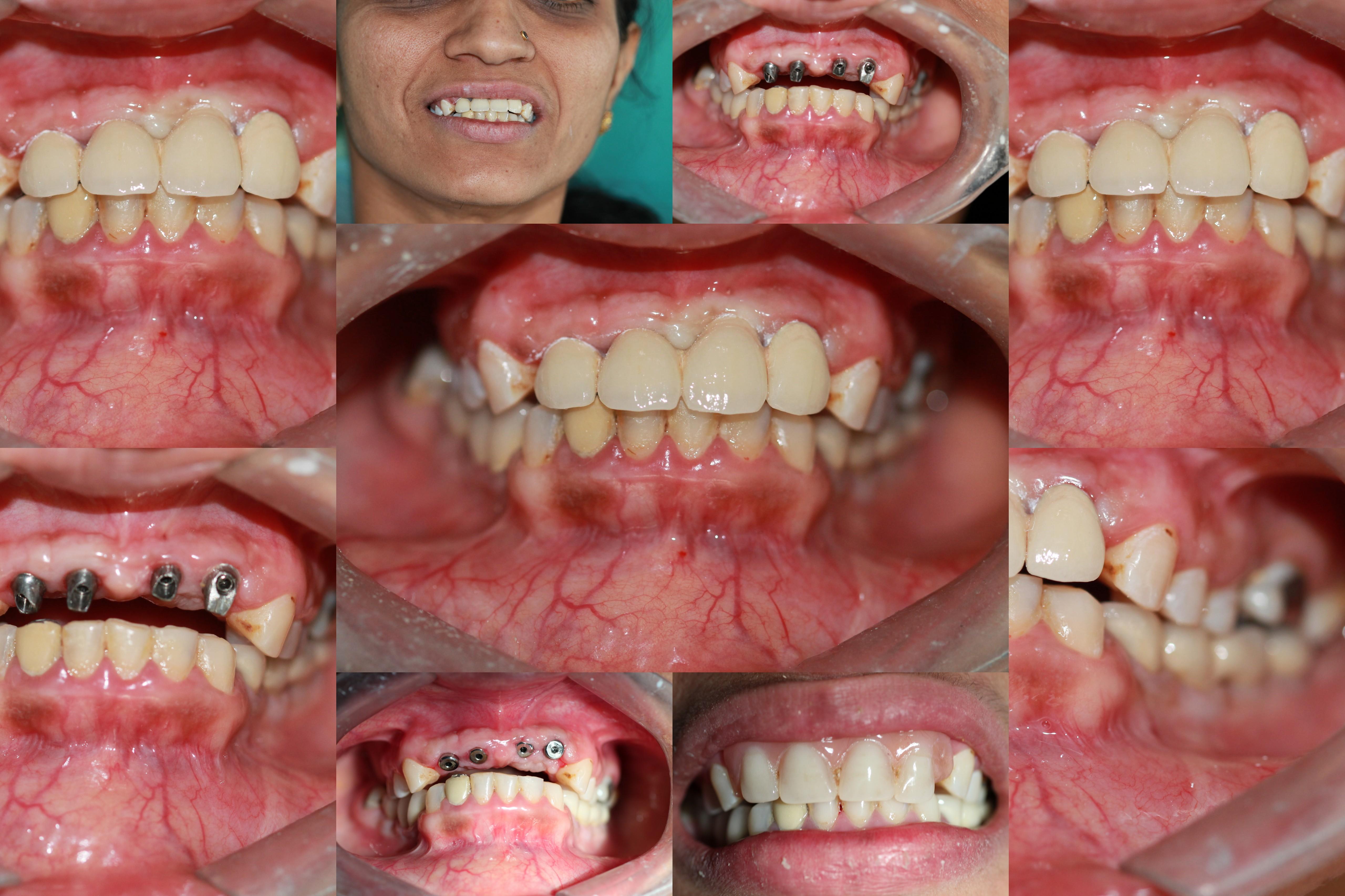 Replacement of Upper Naterior teeth Using Implants Bhandari Dental Clinic Mukund Nagar,Pune