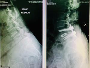 Spondylolisthesis Correction Surgery|Dr.Kiran Kumar Lingutla|Ameerpet,Hyderabad