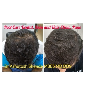 Hair Thinning Treatment|Root Care Dental, Skin and Hair Clinic|Karve Road ,Pune