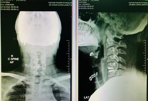 Cervical Disc Replacement Surgery|Dr.Kiran Kumar Lingutla|Ameerpet,Hyderabad