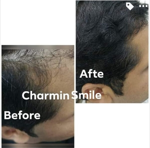 Non surgical hair regrowth therapy by Dr. Snehal Jain