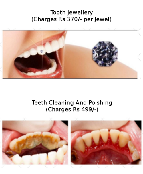 Tooth Jewellery|Charming Smiles Dental Clinic|Dombivli West,Mumbai