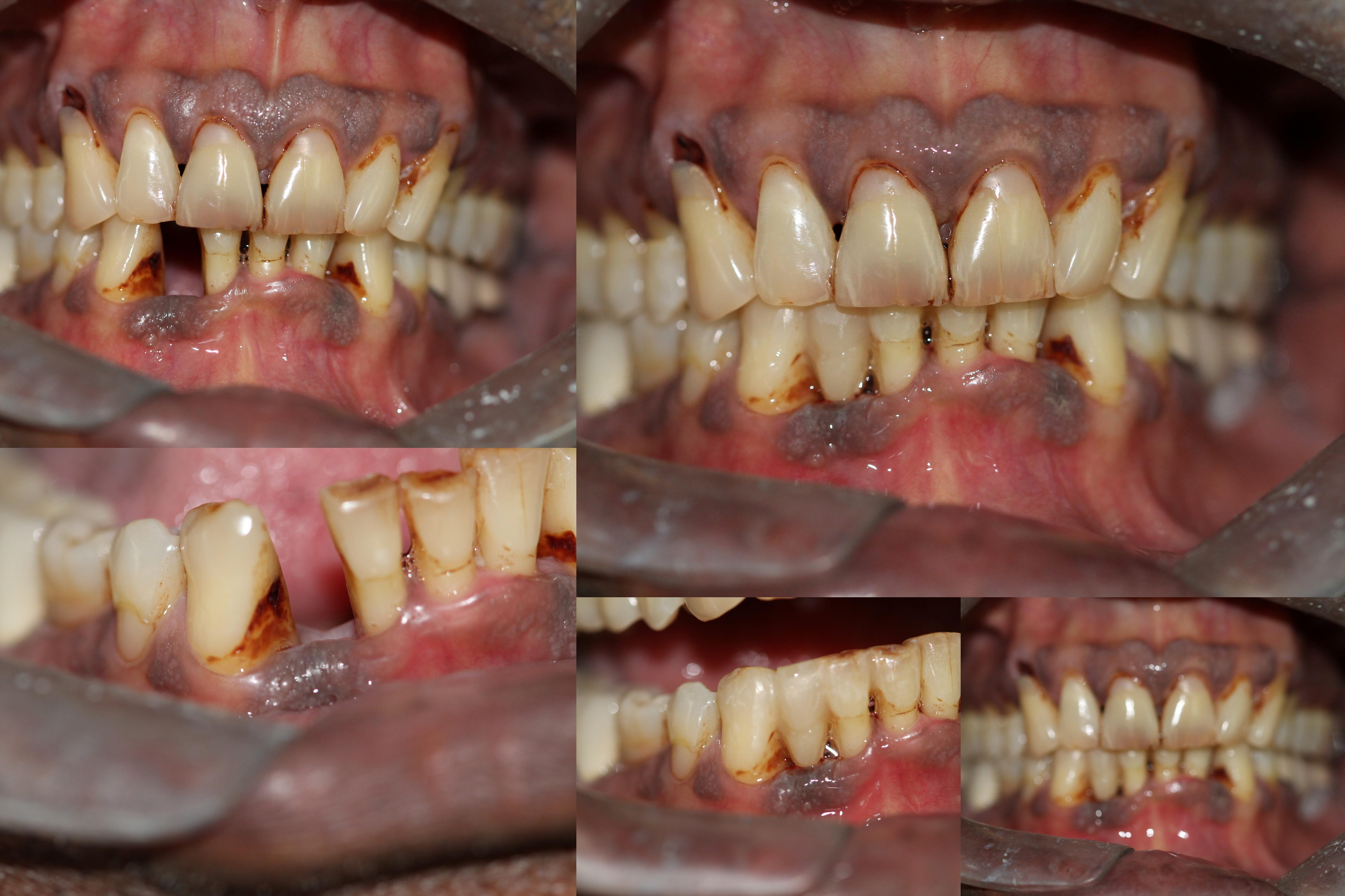 Bonded Bridge to replace lower anterior teeth Bhandari Dental Clinic Mukund Nagar,Pune