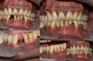 Bonded Bridge to replace lower anterior teeth|Bhandari Dental Clinic|Mukund Nagar,Pune