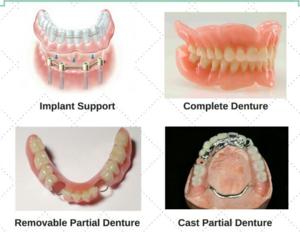 Complete Denture, Removable Partial Denture, Cast Partial Denture, Implant Support