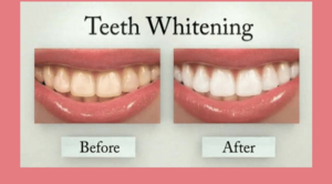 Charming Smiles Dental Clinic Dombivli West,Mumbai