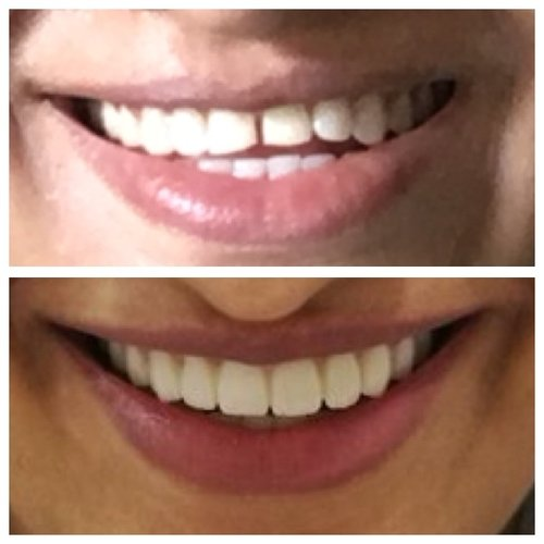 Smile Makeover at Charming Smile Multispeciality Clinic|Charming Smiles Dental Clinic|Dombivli West,Mumbai