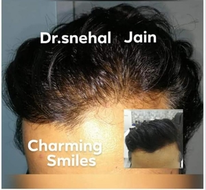 Hair Regrowth Therapy by Dr. Snehal Jain