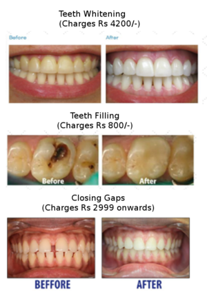 Teeth Whitening, Filling and Closing Gaps