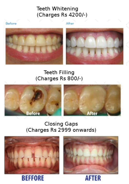 Teeth Whitening, Filling and Closing Gaps|Charming Smiles Dental Clinic|Dombivli West,Mumbai