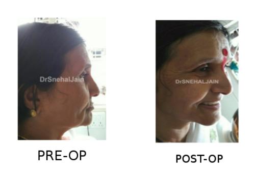 Pre & Poat Operation|Charming Smiles Dental Clinic|Dombivli West,Mumbai