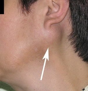 Neck swelling|The Head and Neck Clinic|Wanowarie,Pune
