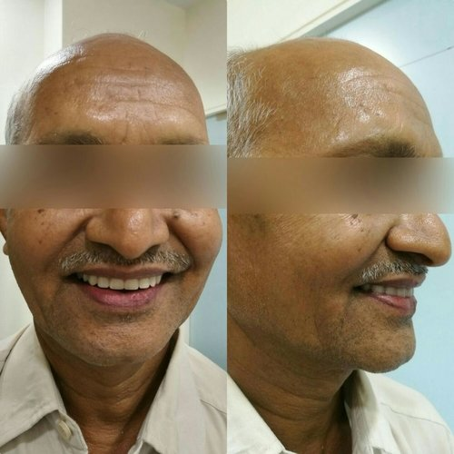 After dental treatment|Charming Smiles Dental Clinic|Dombivli West,Mumbai