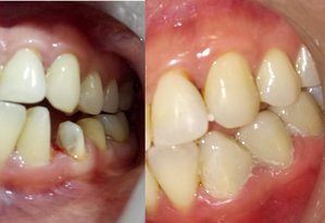 Before and After: Conservative Aesthetic advanced dentistry protocol|Charming Smiles Dental Clinic|Dombivli West,Mumbai