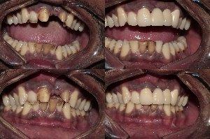 Replacement of Upper front teeth using PFM Bridge|Bhandari Dental Clinic|Mukund Nagar,Pune