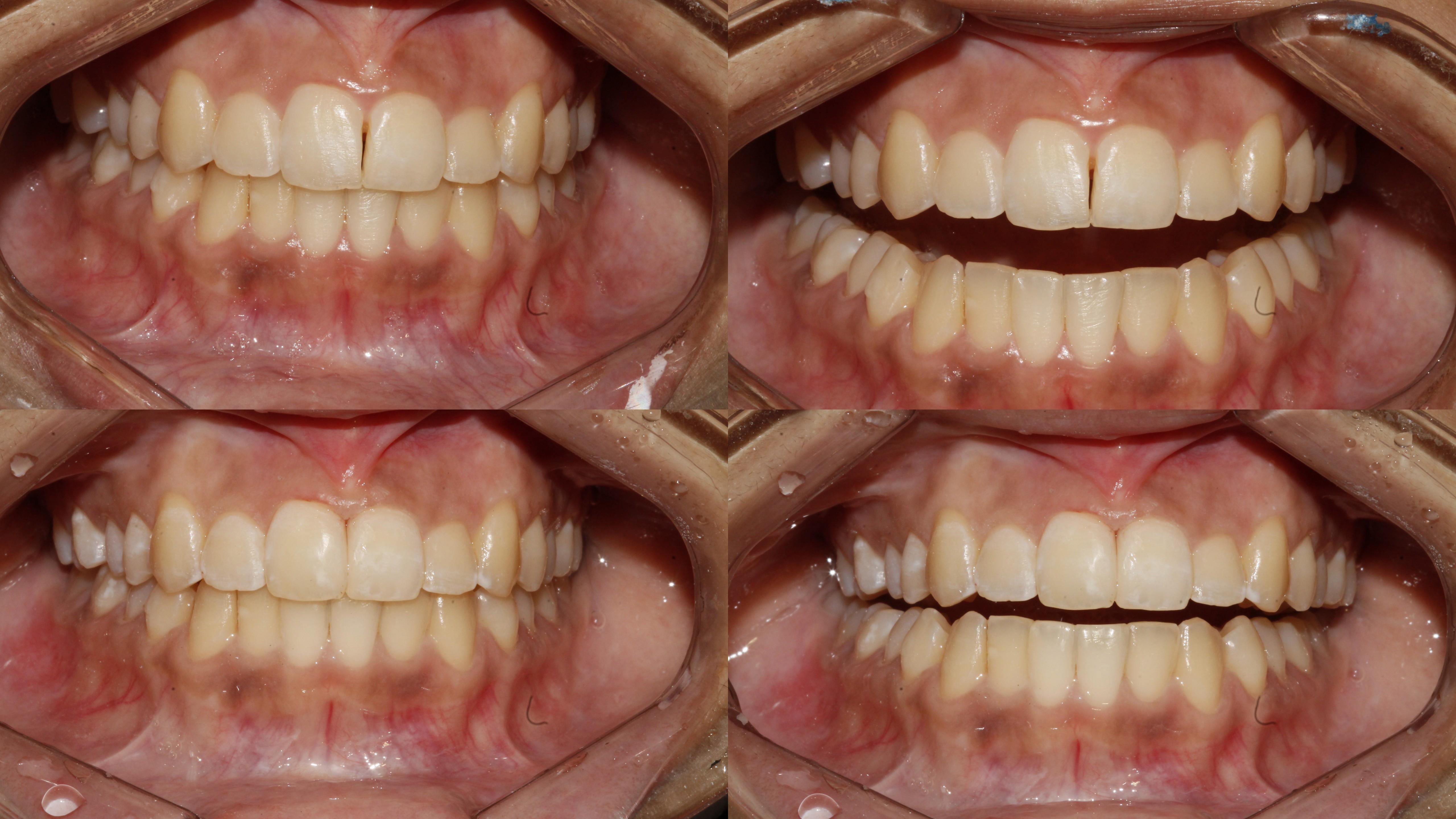 Cosmetic Treatment to Close Dark Triangle between front Teeth Bhandari Dental Clinic Mukund Nagar,Pune