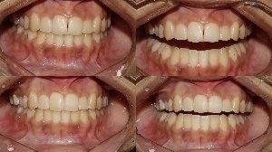 Cosmetic Treatment to Close Dark Triangle between front Teeth|Bhandari Dental Clinic|Mukund Nagar,Pune