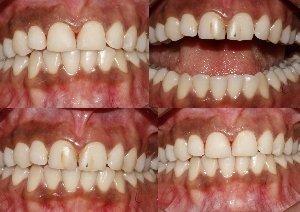 Cosmetic treatment to Repair the Discoloured Teeth|Bhandari Dental Clinic|Mukund Nagar,Pune