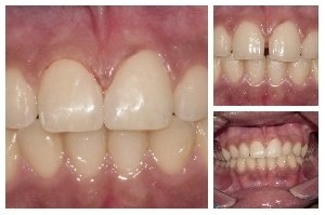 Closure of space between front Teeth|Bhandari Dental Clinic|Mukund Nagar,Pune